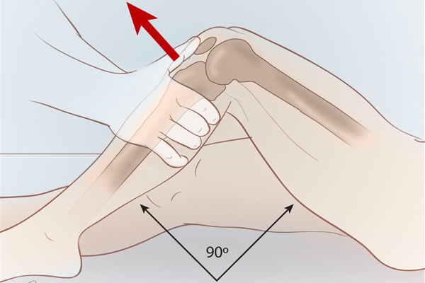 conoce-nuestros-productos-de-ortopedia_