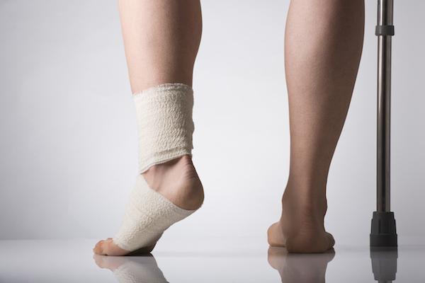Errores más comunes en el tratamiento de un esguince de tobillo
