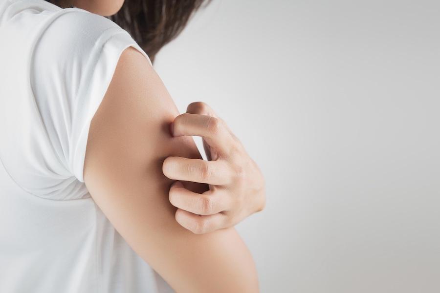 Día Mundial de la Psoriasis, ¿qué sabemos sobre esta enfermedad?